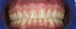 Clsoeup of perfectly aligned smile aftre Invisalign treatment