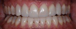 Closed and properly aligned smile after treatment