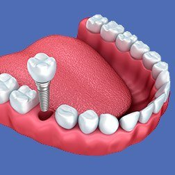 Animation of implant dental crown placement