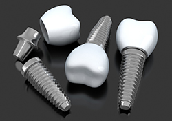 Animation of several implant crowns
